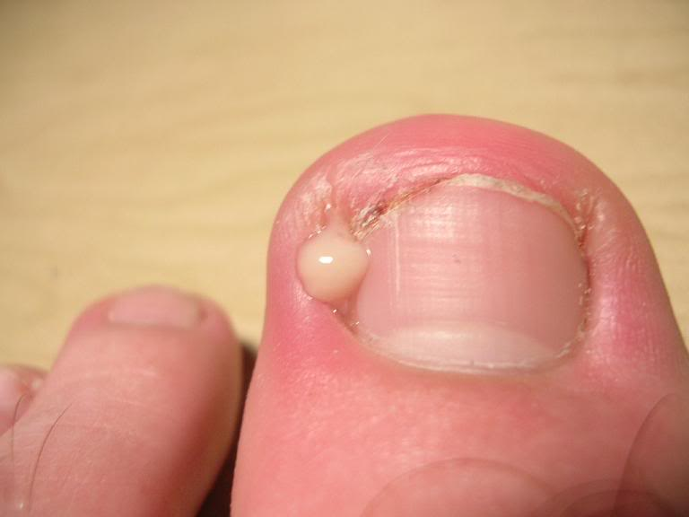 How to Remove an Ingrown Toenail (with Pictures) - wikiHow